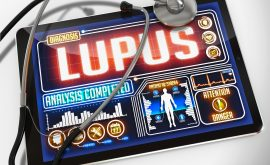 Environmental Exposures & Lupus