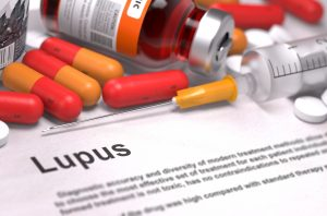 Environmental Exposures & Lupus: Is There a Connection?