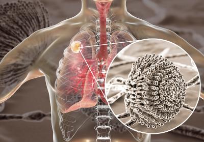Symptoms of Breathing Mold